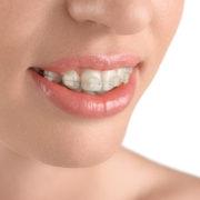 Schöne Zähne - Fachpraxis für Kieferorthopäde Theo Bamidis Köln