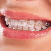 Lächelnder Mensch mit festsitzender Zahnspange